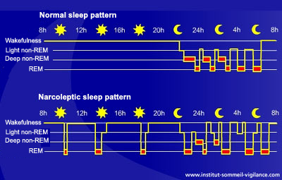 what is the difference between deep sleep and light sleep block diagram biomedical sleep inducer